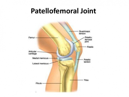 Patellofemoral Joint Physiopedia