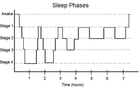 Graph showing the passage through the four principle phases of sleep over the course of a night. Portions marked in red indicate REM sleep