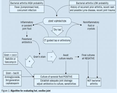 Septic  Infectious  Arthritis