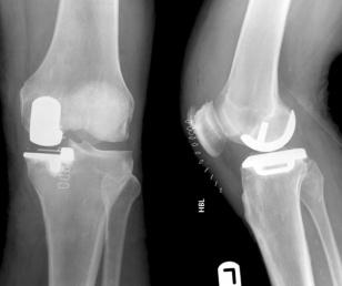Partial Knee Replacement >> Partial Knee Replacement Physiopedia