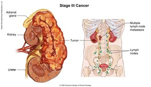 Renal Cancer Physiopedia