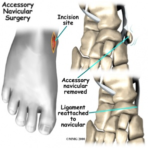 Accessory Navicular Bone Physiopedia An accessory navicular is an extra bone found next (proximal) to the navicular bone. accessory navicular bone physiopedia