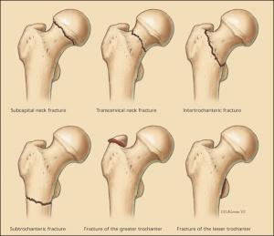 Figure1 Hip Fracture.jpeg