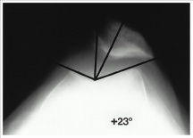 Radiograph for patellar subluxation.jpg