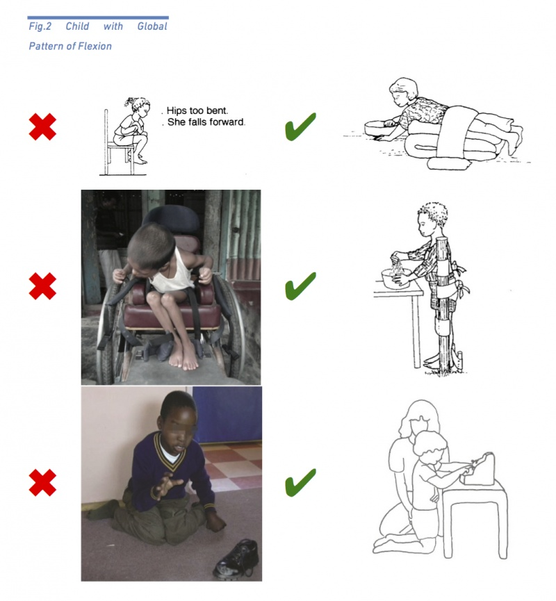 Positioning the Child with Cerebral Palsy - Physiopedia