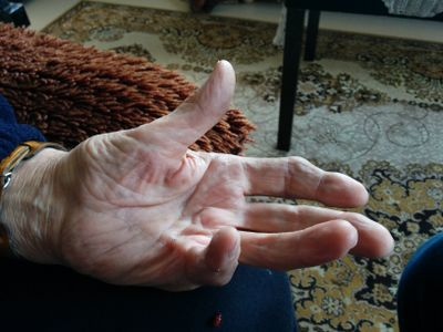 Image 1: Clinical presentation of Dupuytren contracture