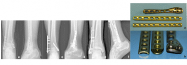 Ankle and Foot Fractures - Physiopedia