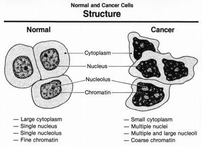 Normal and cancer cells structure.jpg