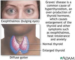 Hyperthyroidism Physiopedia