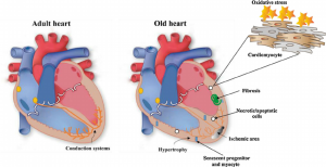 Fig-2-Changes-in-the-myocardium-during-aging-Heart-and-vasculature-undergo-alterations.png