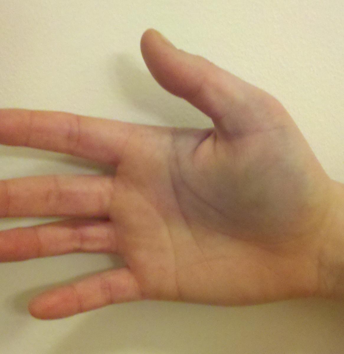 Ушиб пальца на ноге: что делать в домашних условиях и как 52