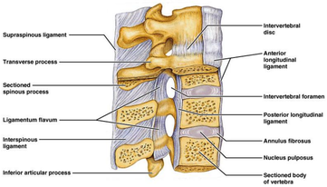 Lumbar Compression Fracture Physiopedia