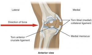 medial collateral ligament of the knee - physiopedia, universal, Human body