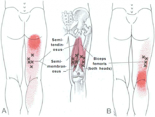 biceps femoris - physiopedia, Muscles
