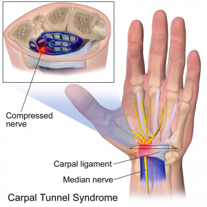 Carpal Tunnel Syndrome Physiopedia
