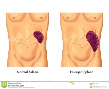 Enlarged-spleen-medical-illustration-symptoms-50334478.jpg