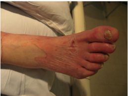 post delivery cellulitis