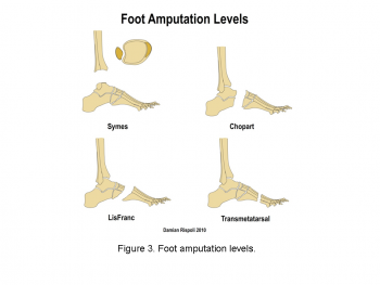 Principles of amputation - Physiopedia