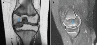 MRI for osteochondral defect.jpg