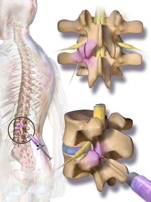 intra articular lumbar facet joint steroid injections