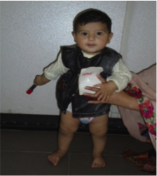 Case Study-Idiopathic Unilateral Clubfoot 5.png