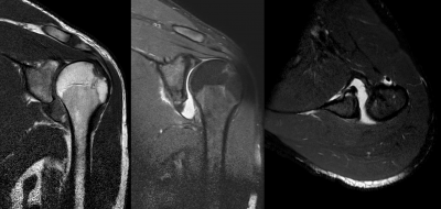 Shoulder MRI after dislocation showing Hill-Sachs lesion and labral Bankart's lesion