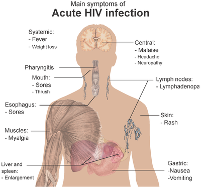 Symptoms of acute HIV infection.png