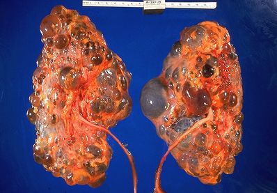 PolycysticKidneys.jpg