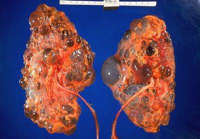 Polycystic Kidney Disease Physiopedia