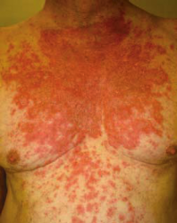 This is an illustration of a discoid rash that is characteristic of a patient with SLE.  It is included in this project courtesy of www.googleimages.com