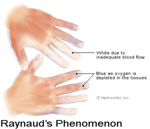 Systemic lupus erythematosus physiopedia this illustration was included courtesy of httpmedicinenet sciox Image collections