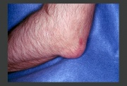 Presentation of acute gout at the olecranon