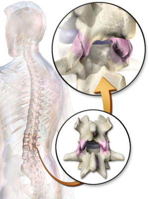 Facet Joints - Physiopedia