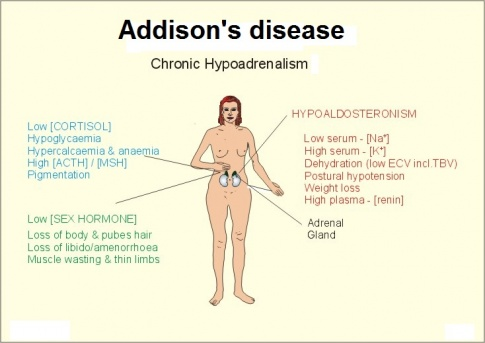 addison's disease case study - physiopedia, Human body