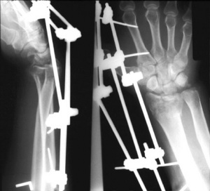 Distal Radial Fractures - Physiopedia