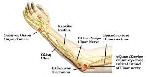 Ulnar Nerve Entrapment - Physiopedia