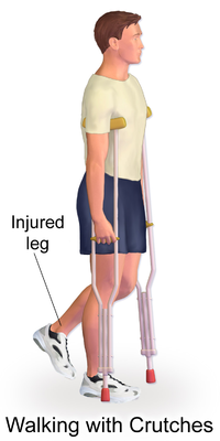 Stress Fractures Physiopedia