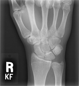 Wrist Case 10 Background: Department Test: Feinberg School of ...