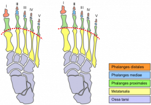 Morton's Toe - Physiopedia
