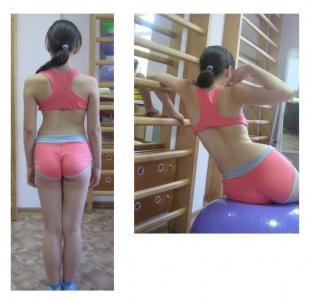 Back Exercises For Scoliosis Pdf