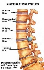 Lumbar Spondylosis - Physiopedia
