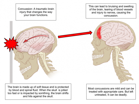Concussion Anatomy.png