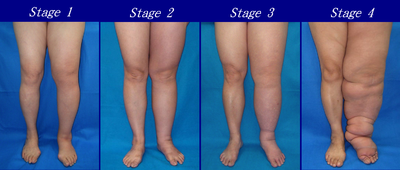 Lymphedema stages.png