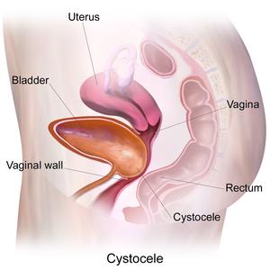 Pelvic Organ Prolapse Physiopedia