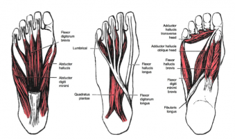 Calcaneal Spurs - Physiopedia
