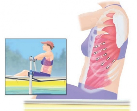 Fractura da costela.jpg