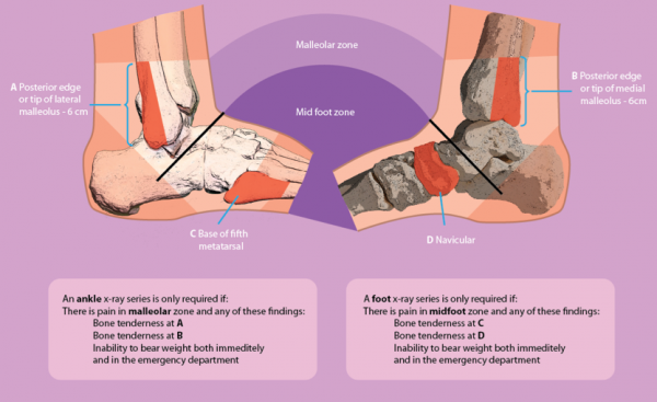 Ankle Sprain Physiopedia
