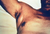 Swollen axillary lymph node associated with yersinia pestis.  Image from http://pathmicro.med.sc.edu/ghaffar/zoonoses.htm