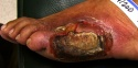 Diabetic foot ulcer.jpeg