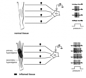 Figure 3: normal neural activity vs spinal neurones in a state of hyper-excitability (Sciable and Richter, 2004)